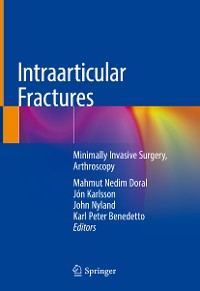 Cover Intraarticular Fractures