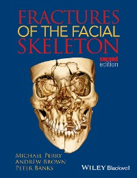 Cover Fractures of the Facial Skeleton