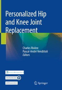 Cover Personalized Hip and Knee Joint Replacement