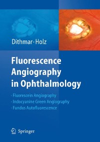 Cover Fluorescence Angiography in Ophthalmology