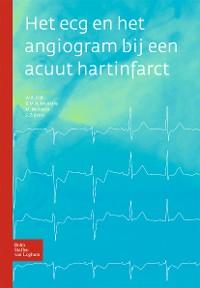 Cover Het ecg en het angiogram bij een acuut hartinfarct