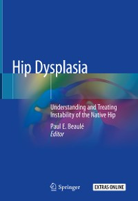 Cover Hip Dysplasia