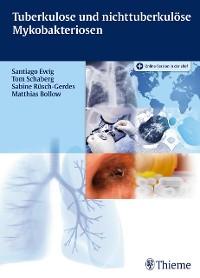 Cover Tuberkulose und nicht tuberkulöse Mykobakteriosen