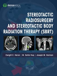 Cover Stereotactic Radiosurgery and Stereotactic Body Radiation Therapy (SBRT)