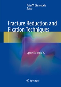 Cover Fracture Reduction and Fixation Techniques