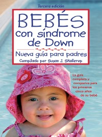 Cover Bebes con Sindrome de Down