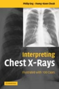 Cover Interpreting Chest X-Rays