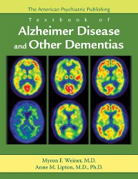 Cover The American Psychiatric Publishing Textbook of Alzheimer Disease and Other Dementias