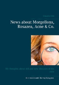Cover News about Morgellons, Rosazea, Acne & Co.