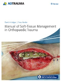 Cover Manual of Soft-tissue Management in Orthopaedic Trauma