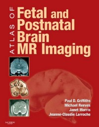 Cover Atlas of Fetal and Postnatal Brain MR