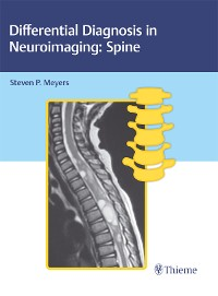 Cover Differential Diagnosis in Neuroimaging: Spine
