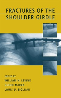 Cover Fractures of the Shoulder Girdle