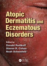 Cover Atopic Dermatitis and Eczematous Disorders