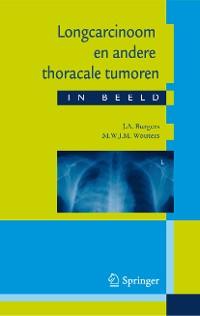 Cover Longcarcinoom en andere thoracale tumoren in beeld