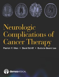 Cover Neurologic Complications of Cancer Therapy