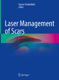 Cover Laser Management of Scars