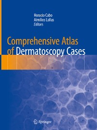 Cover Comprehensive Atlas of Dermatoscopy Cases