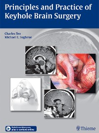 Cover Principles and Practice of Keyhole Brain Surgery