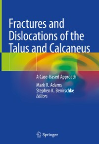Cover Fractures and Dislocations of the Talus and Calcaneus
