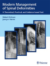Cover Modern Management of Spinal Deformities