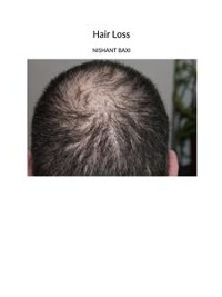 Cover Hair Loss